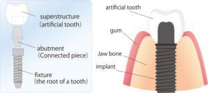 implant dentist hadley, ma