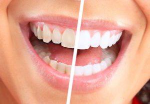 dentistry in hadley, ma