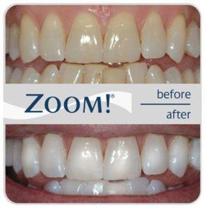 cosmetic dentistry hadley, ma