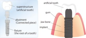Image of a breakdown of the parts of dental implants.