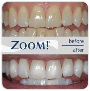Before and after image of teeth treated with the Zoom Teeth Whitening process.