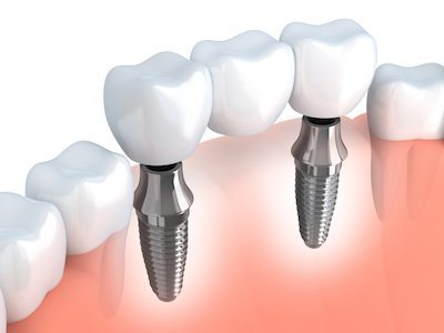3D image of dental implants and how they fit between existing teeth.