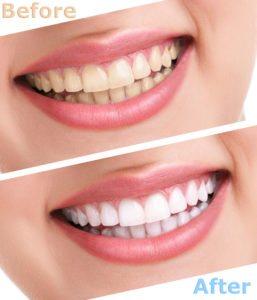 teeth whitening hadley, ma